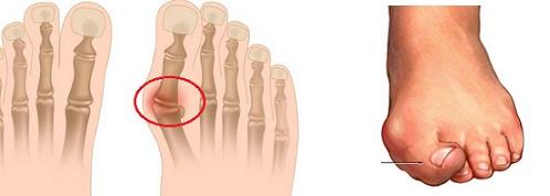 親指 の 付け根 の 痛み